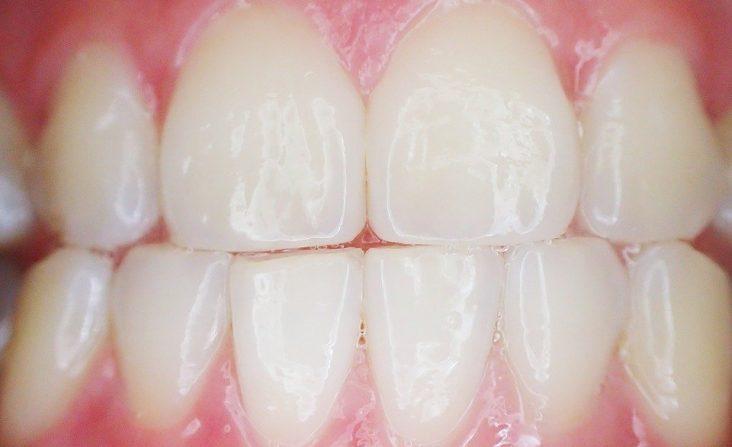 periodoncia periodòncia